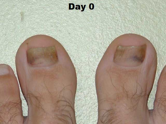 Vitamin C DHAA Serum Applied to Toenail Fungus Case Study